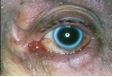 Blepharitis (eyelid infection).