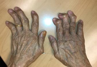 Common hand conditions