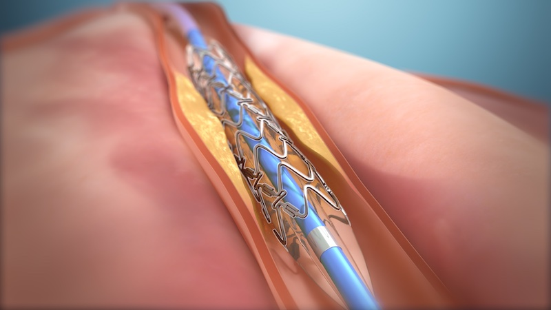 New treatment for coronary artery disease